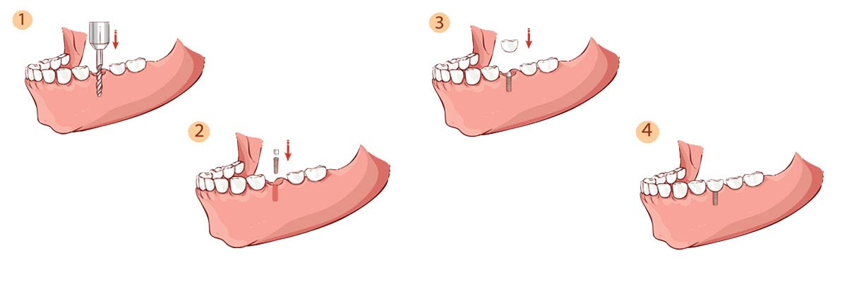 Florence The Dental Implant Procedure